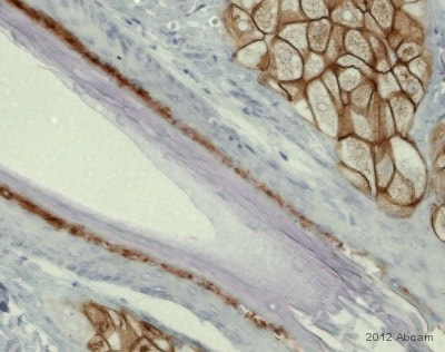 Immunohistochemistry (Formalin/PFA-fixed paraffin-embedded sections) - Anti-Perforin antibody [5B10], prediluted (ab75573)