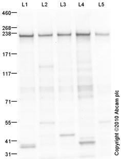 Western blot - non-muscle Myosin IIA antibody (ab75590)