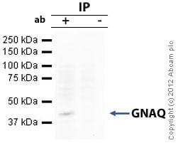 Immunoprecipitation - Anti-GNAQ antibody (ab75825)
