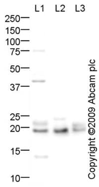 Western blot - Cytochrome b245 Light Chain antibody (ab75941)