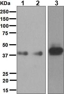 Western blot - Anti-CD1a antibody [EP3091] (ab76531)