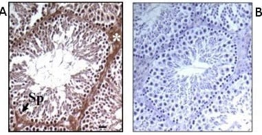Immunohistochemistry (Formalin/PFA-fixed paraffin-embedded sections) - Anti-Prokineticin 2 antibody (ab76747)