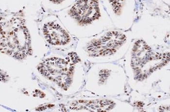 Immunohistochemistry (Formalin/PFA-fixed paraffin-embedded sections) - ZCCHC6 antibody (ab76901)