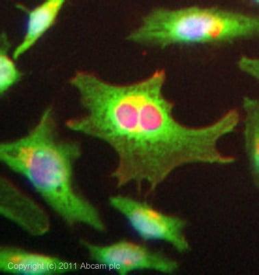 Immunocytochemistry/ Immunofluorescence-Slingshot homolog 1 antibody(ab76943)