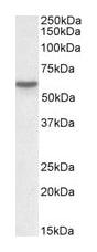 Western blot - Vitamin D Binding protein antibody (ab77357)