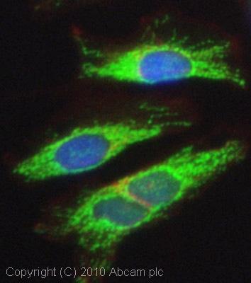 Immunocytochemistry/ Immunofluorescence - TCHP antibody (ab77622)