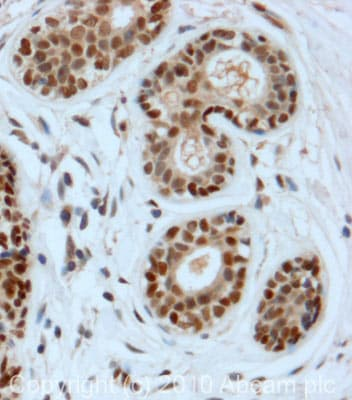 Immunohistochemistry (Formalin/PFA-fixed paraffin-embedded sections) - DDB2 antibody (ab77765)