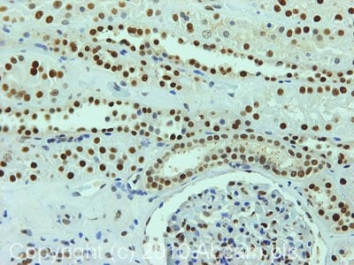 Immunohistochemistry (Formalin/PFA-fixed paraffin-embedded sections) - NUCKS1 antibody (ab77770)