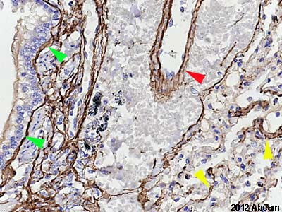 Immunohistochemistry (Formalin/PFA-fixed paraffin-embedded sections) - Anti-Elastin antibody [10B8] (ab77804)