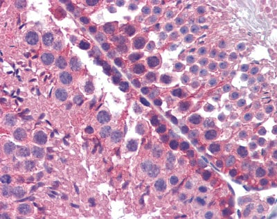 Immunohistochemistry (Formalin/PFA-fixed paraffin-embedded sections) - Anti-CYP1B1 antibody (ab78044)