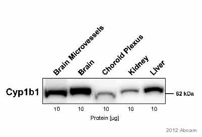 Western blot - Anti-CYP1B1 antibody (ab78044)