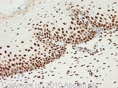 Immunohistochemistry (Formalin/PFA-fixed paraffin-embedded sections) - HNRPA3 antibody (ab78300)