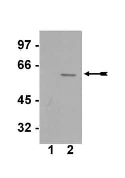 Western blot - AKT1 (phospho S473) antibody [SK703] (ab78403)