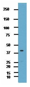 Western blot - HuC antibody (ab78467)