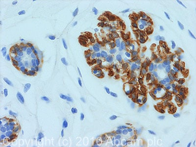 Immunohistochemistry (Formalin/PFA-fixed paraffin-embedded sections) - Calponin antibody (ab78491)