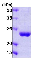 SDS-PAGE - Proteasome 26S S10 protein (Human) (ab78763)