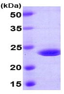 SDS-PAGE - RAIDD protein (His tag) (ab78880)