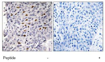 Immunohistochemistry (Formalin/PFA-fixed paraffin-embedded sections) - ATF1 antibody (ab78903)