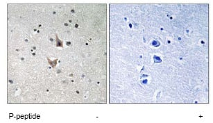 Immunohistochemistry (Formalin/PFA-fixed paraffin-embedded sections) - Presenilin 1 (phospho S357) antibody (ab78914)