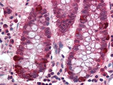 Immunohistochemistry (Formalin/PFA-fixed paraffin-embedded sections) - PRDM5 antibody (ab79016)