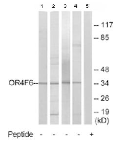 Western blot - OR4F6 antibody (ab79154)
