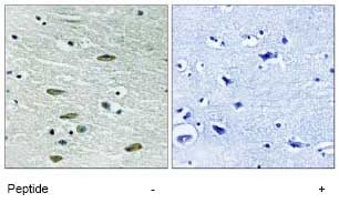 Immunohistochemistry (Formalin/PFA-fixed paraffin-embedded sections) - IGF1 Receptor antibody (ab79176)