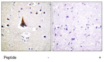 Immunohistochemistry (Formalin/PFA-fixed paraffin-embedded sections) - VAV2 antibody (ab79182)