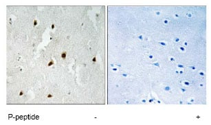 Immunohistochemistry (Formalin/PFA-fixed paraffin-embedded sections) - FOXO4 (phospho S262) antibody (ab79267)