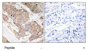 Immunohistochemistry (Formalin/PFA-fixed paraffin-embedded sections) - IL13 receptor alpha 1 antibody (ab79277)