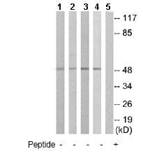 Western blot - IL13 receptor alpha 1 antibody (ab79277)
