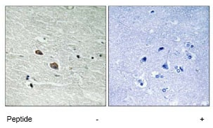 Immunohistochemistry (Formalin/PFA-fixed paraffin-embedded sections) - Anti-TAB3 antibody (ab79289)