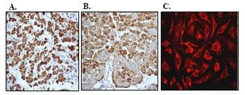 Immunohistochemistry (Formalin/PFA-fixed paraffin-embedded sections) - Cytochrome C oxidase subunit II antibody [EPR3314] (ab79393)