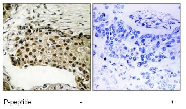 Immunohistochemistry (Formalin/PFA-fixed paraffin-embedded sections) - MSK1 (phospho S212) antibody (ab79499)