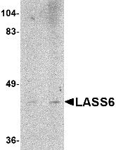 Western blot - LASS6 antibody (ab79509)