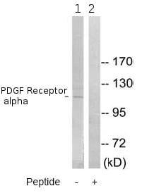 Western blot - PDGF Receptor alpha antibody (ab79514)