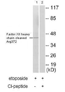 Western blot - Factor XII  heavy chain cleaved Arg372 antibody (ab79554)