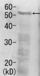Western blot - Rpn5 antibody (ab79773)
