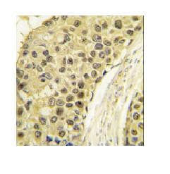 Immunohistochemistry (Formalin/PFA-fixed paraffin-embedded sections) - Anti-Cyclin A2 antibody (ab79986)