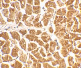 Immunohistochemistry (Formalin/PFA-fixed paraffin-embedded sections) - CX3CR1 antibody (ab8021)