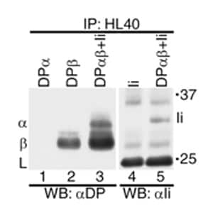Immunoprecipitation - HLA DR + HLA DP antibody [HL-40] (ab8085)