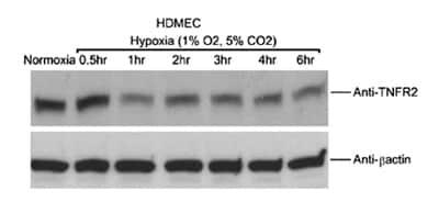 Western blot - TNF Receptor II antibody [MR2-1] (ab8161)