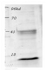 Western blot - acetyl Lysine antibody (ab80178)