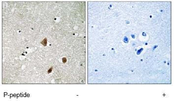 Immunohistochemistry (Formalin/PFA-fixed paraffin-embedded sections) - PAK3 (phospho S154) antibody (ab80181)
