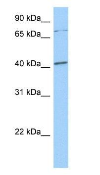 Western blot - SOX4 antibody (ab80261)