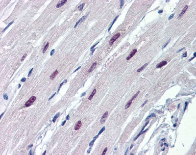 Immunohistochemistry (Formalin/PFA-fixed paraffin-embedded sections) - Anti-SOX4 antibody (ab80261)
