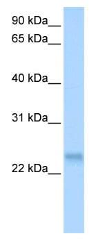 Western blot - SFRS3 antibody (ab80291)