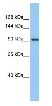 Western blot - ZN295 antibody (ab80304)