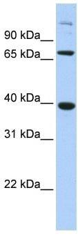 Western blot - SOX7 antibody (ab80331)