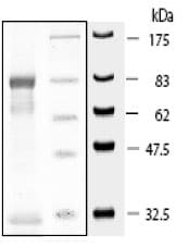 SDS-PAGE - PDPK1 protein (Active) (ab80411)
