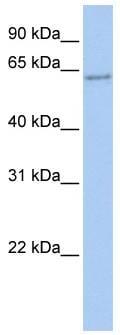 Western blot - CP2c antibody (ab80445)